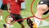 Podolski'nin bacak kasları dikkatlerden kaçmadı