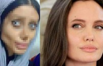 Angelina Jolie'ye benzemek isteyen kızın son hali şoke etti