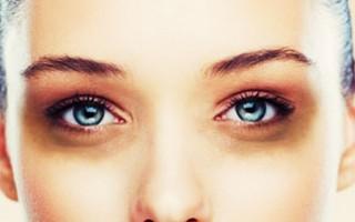 Göz altı morlukları neden olur ve nasıl geçer?