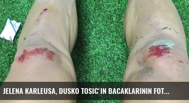 Jelena Karleusa, Dusko Tosic'in Bacaklarının Fotoğraflarını Paylaştı