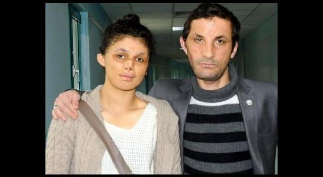 Türkiye'de yüz nakli yapılan ilk kadın olacak!