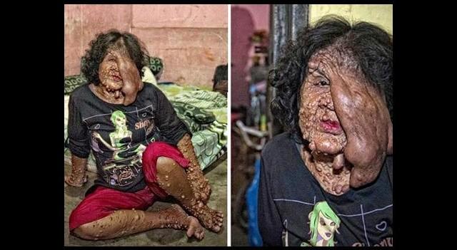 Tümörlü kadını önce ailesi sonra köyü kovdu