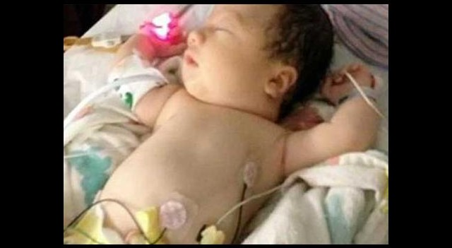 Vücudunda kan olmadan doğdu!