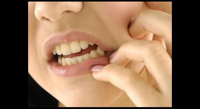 Dişlere Zarar Veriyor