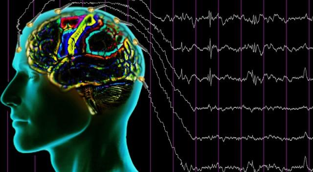 Epilepsi nedir, belirtileri nelerdir?