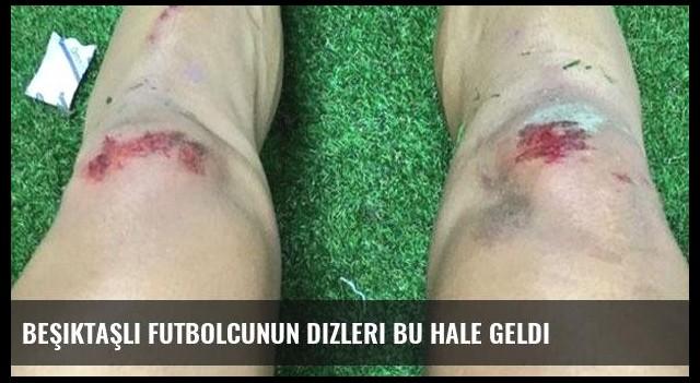 Beşiktaşlı futbolcunun dizleri bu hale geldi