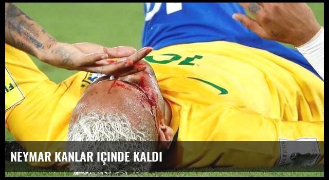 Neymar kanlar içinde kaldı