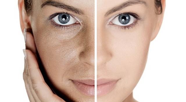 Doğal yüz maskesiyle cildinizi beyazlatın