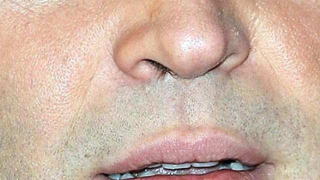 Burnundan çıkan doktorları bile şaşırttı
