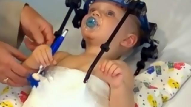 Başı kopan 16 aylık bebek hayata tutundu!
