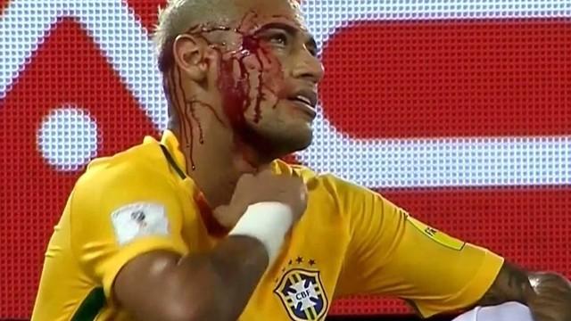 Neymar kanlar içinde yerde kaldı!