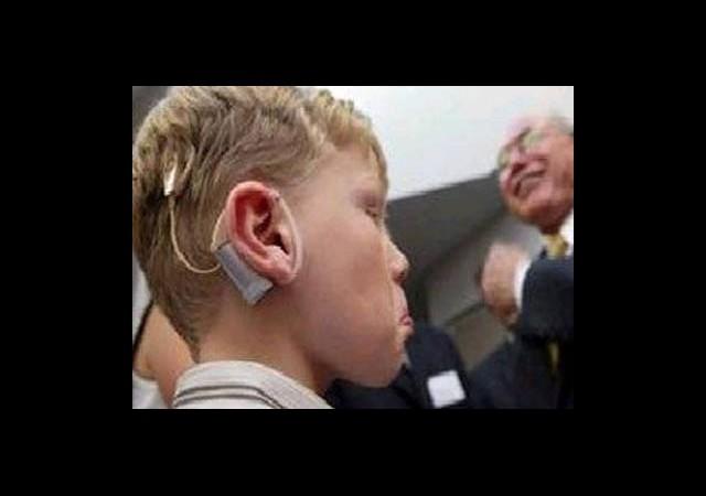 Biyonik Kulakla Sese Kavuşacaklar