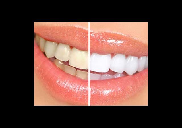 Diş Beyazlatıcılara Sınırlama