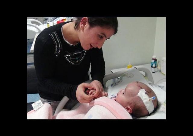3 Aylık Bebeğe Beyin Ameliyatı