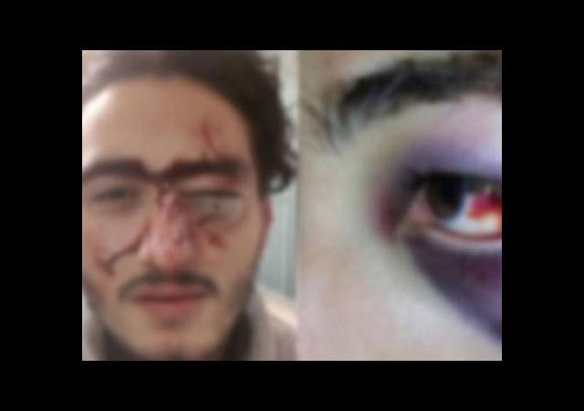 Polis feci şekilde dövdü