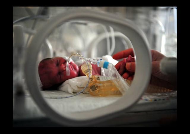 Binlerce Bebek Kalp Hastası Doğuyor