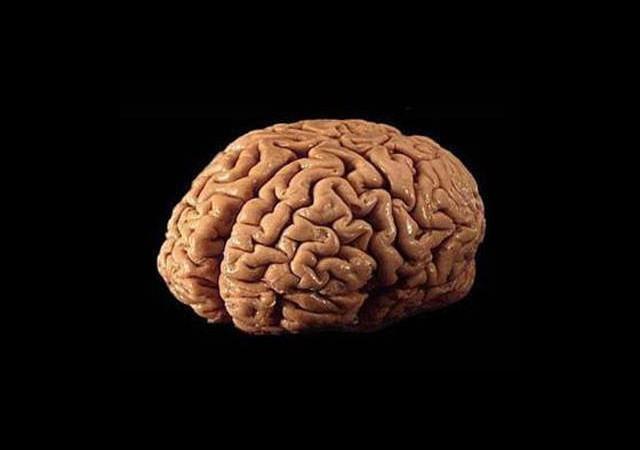 Laboratuvarda Beyin Ürettiler