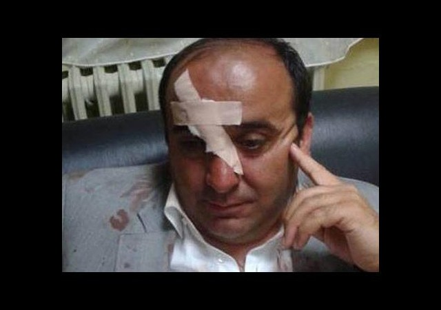 Belediye başkanı saldırıya uğradı