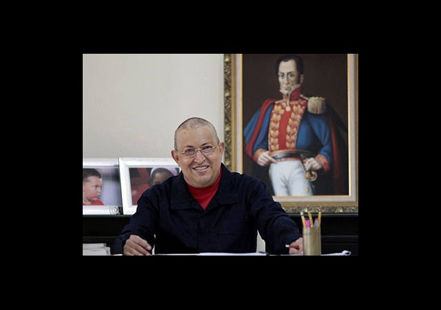 Chavez Küba'da Ameliyat Oldu