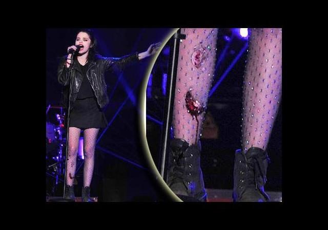 Miley Cyrus konserinde 'kan' aktı!