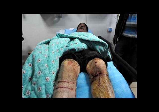 Yaşlı Adam Kendisine Saldıran Kurdu Elleriyle Öldürdü
