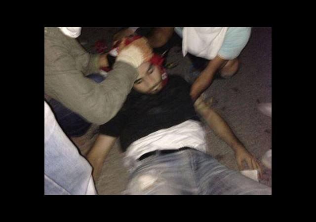 Hatay'da Ölen Ahmet Atakan'ın İlk Otopsi Raporu Açıklandı