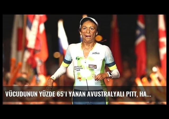 Vücudunun Yüzde 65'i Yanan Avustralyalı Pitt, Havai Yarışını Tamamladı