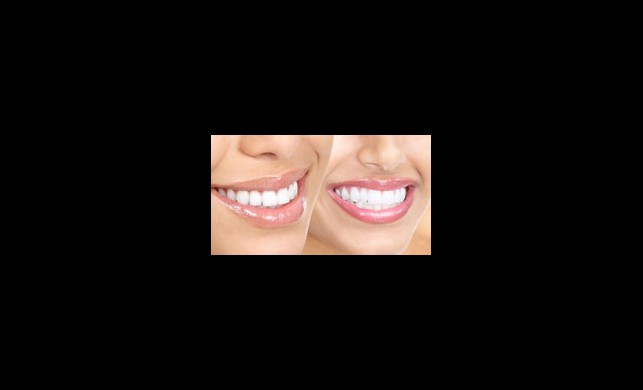 Yeni Yılda Bembeyaz Dişler