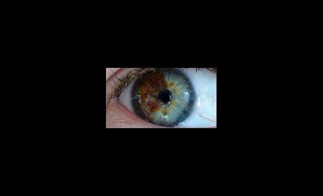 Göz Renginizden Memnun Değil Misiniz? Sadece Ufak Bir Operasyon, Hem de Kalıcı