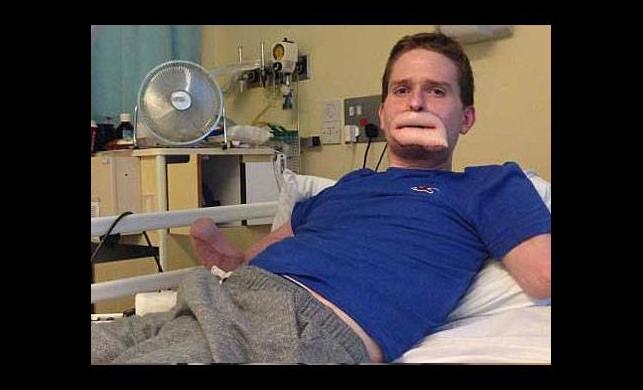 Grip sandığı hastalık bacak ve kollarından etti!