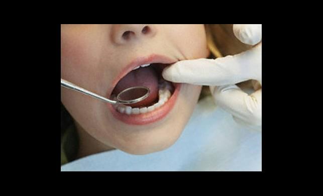 22 Yıl Diş Ağrısı Çekti