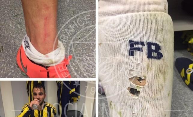 Fenerbahçe penaltı pozisyonu sonrası bu fotoğrafı paylaştı!