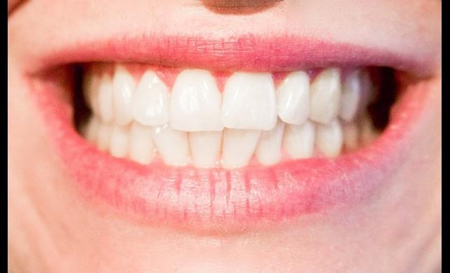Profesyonel diş beyazlatma uygulaması yaygınlaşıyor