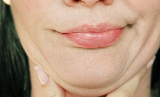 Botoks ile çene küçültme
