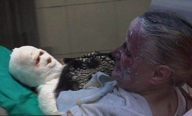 Kulak kıllarını yakmak istedi eşini ve kendisini yaktı