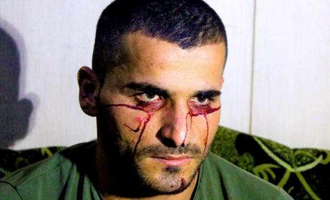 Deyimdi gerçek oldu! Iraklı genç 'kan ağlıyor'