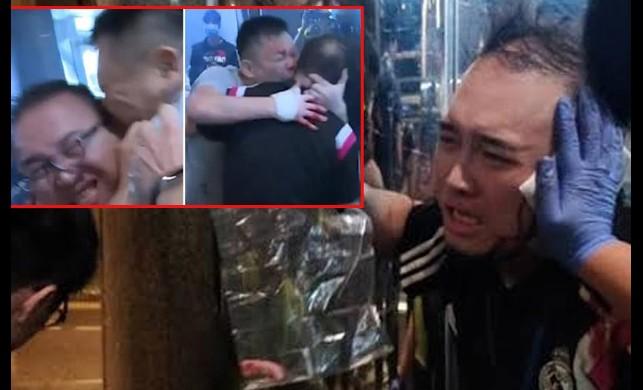 Hong Kong'da gözü dönen gösterici, ünlü siyasetçinin kulağını kopardı