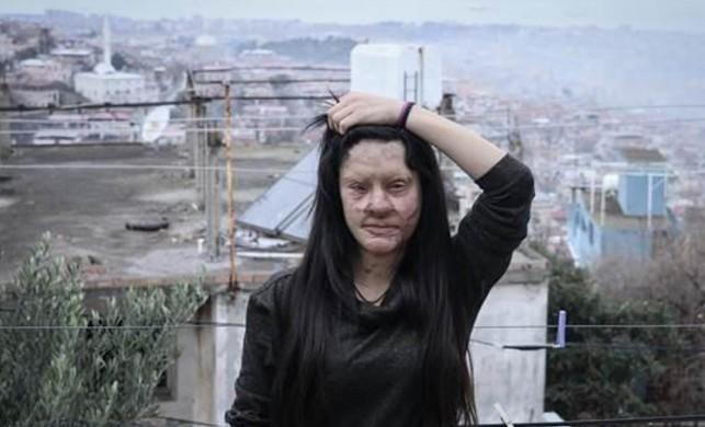 Berfin Özek, yüzüne asit döken sanığa verilen cezaya tepki gösterdi: 'Benim acılarım 13 yıla sığacak mı?'