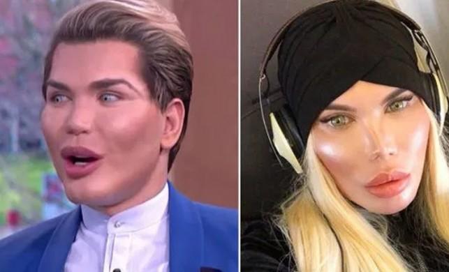 Ken Bebek lakaplı Rodrigo Alves Türkiye'de cinsiyet değiştirdi!