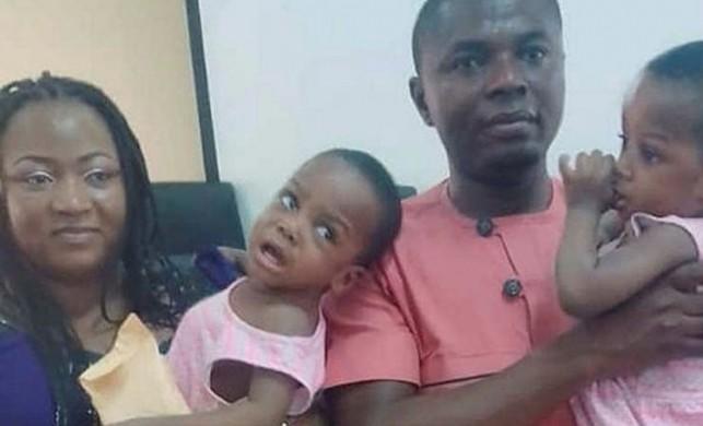 Nijerya'daki siyam ikizlerini 78 doktor ayırdı