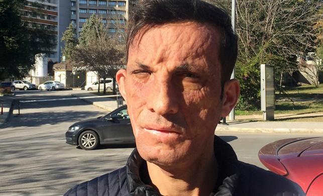 Türkiye'nin ilk yüz nakillisi Uğur Acar, tek dileğini böyle açıkladı