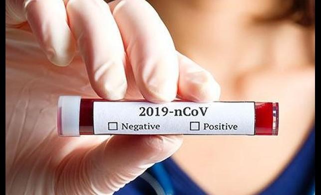 Koronavirüs testi ( Corona virüs ) testi yaptırırken buna dikkat: 24 saat sonra pozitif çıkabilir