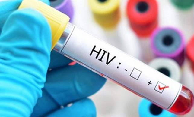 Dr. Anthony Fauci AIDS hastalığıyla ilgili gerçekleri, kamuoyundan saklamakla suçlandı
