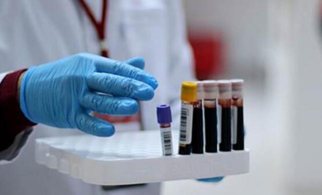 Korkutan koronavirüs bilançosu! Brezilya'da son 24 saatte 845 ölüm!