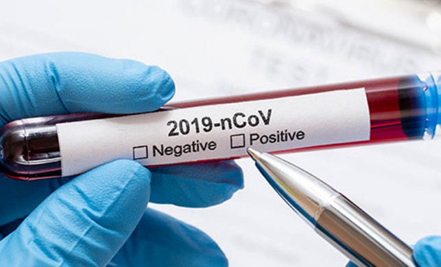 İngiliz hükümeti resmi olarak duyurdu: Koronavirüs belirtilerine tat-koku kaybı da eklendi