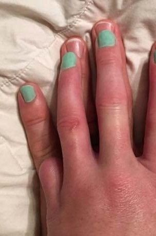 Parmağını kaybeden kadın ve fedakar eşi fenomen oldu!