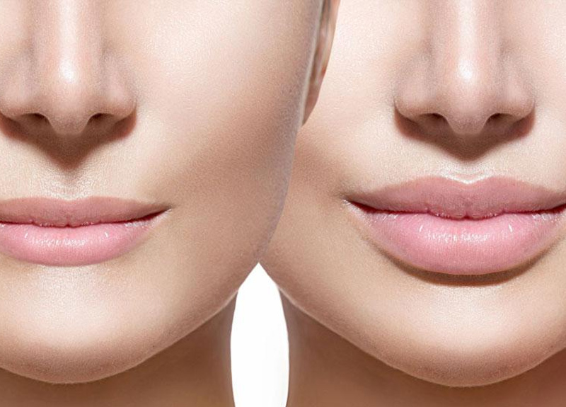 Dudak estetiğinde dolgu ve botoks kullanımı