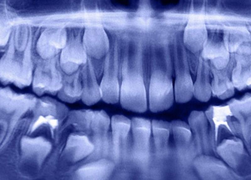 7 yaşındaki çocuğun ağzından 500'den fazla diş çıkarıldı