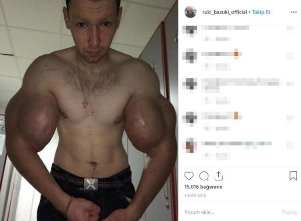 Rus vücut geliştirmeci Kirill Tereshin ameliyat oldu, kollarından bunlar çıktı