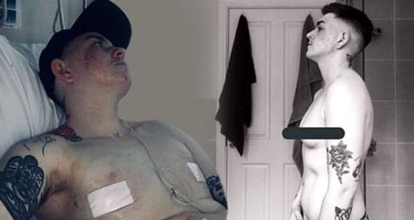 Cinsiyetini değiştirmek için göğüslerini aldıran genç kadın kendini asarak intihar etti
